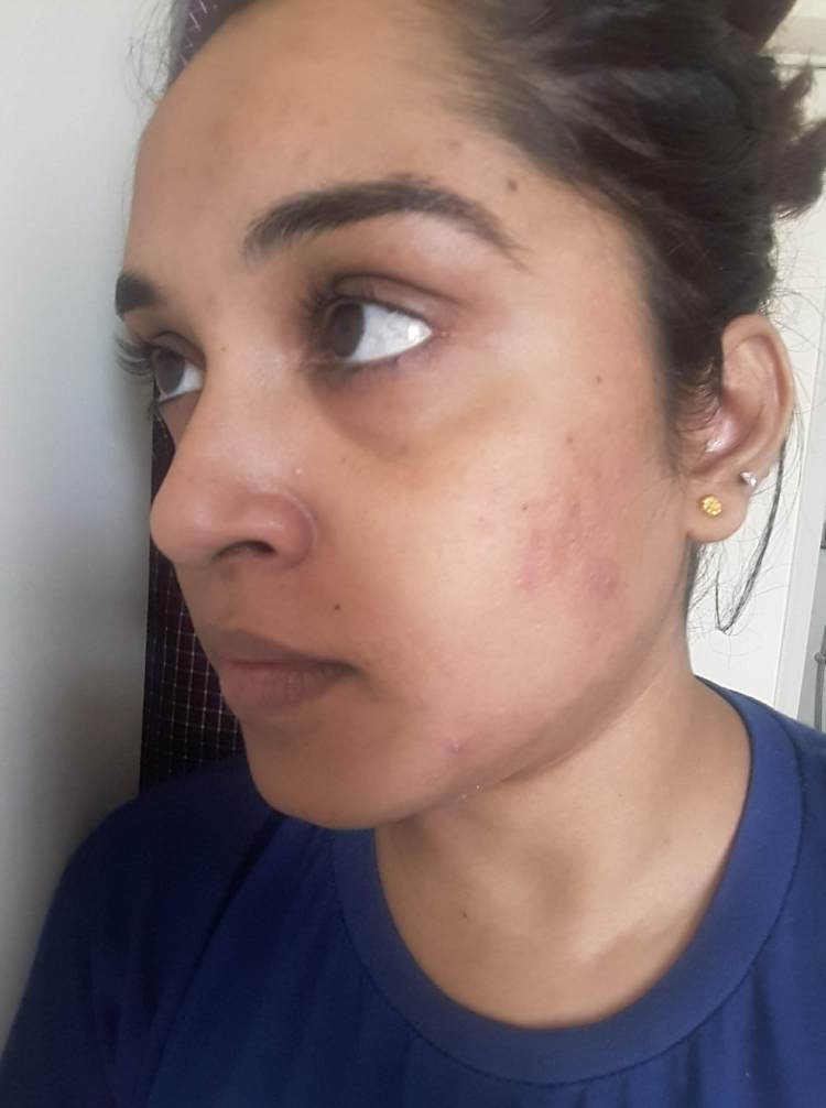 After acne treatment